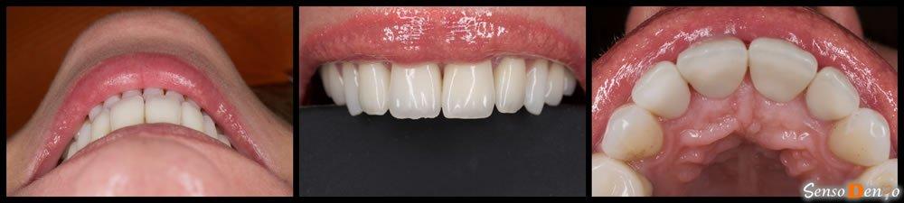 Coroana dentara - dinti fata