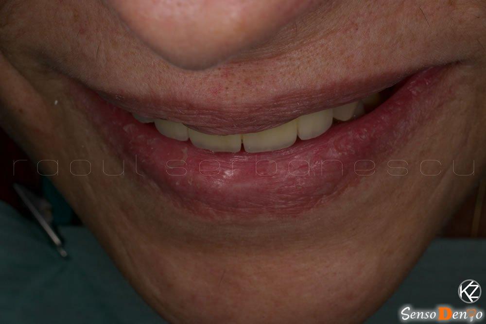 Coroana dentara - dinti naturali