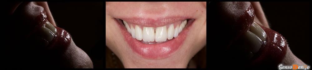 Coroana dentara - dinti sus