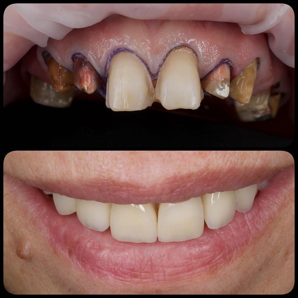 Coroana dentara - pivot
