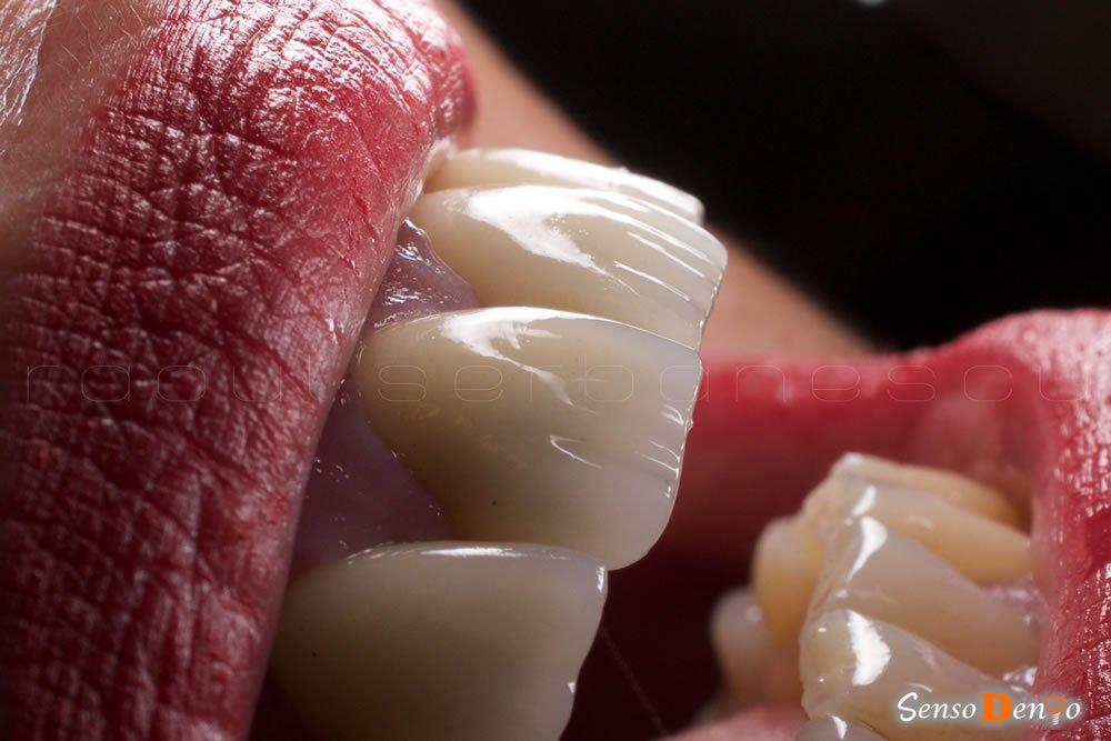 Coroana dentara dinte