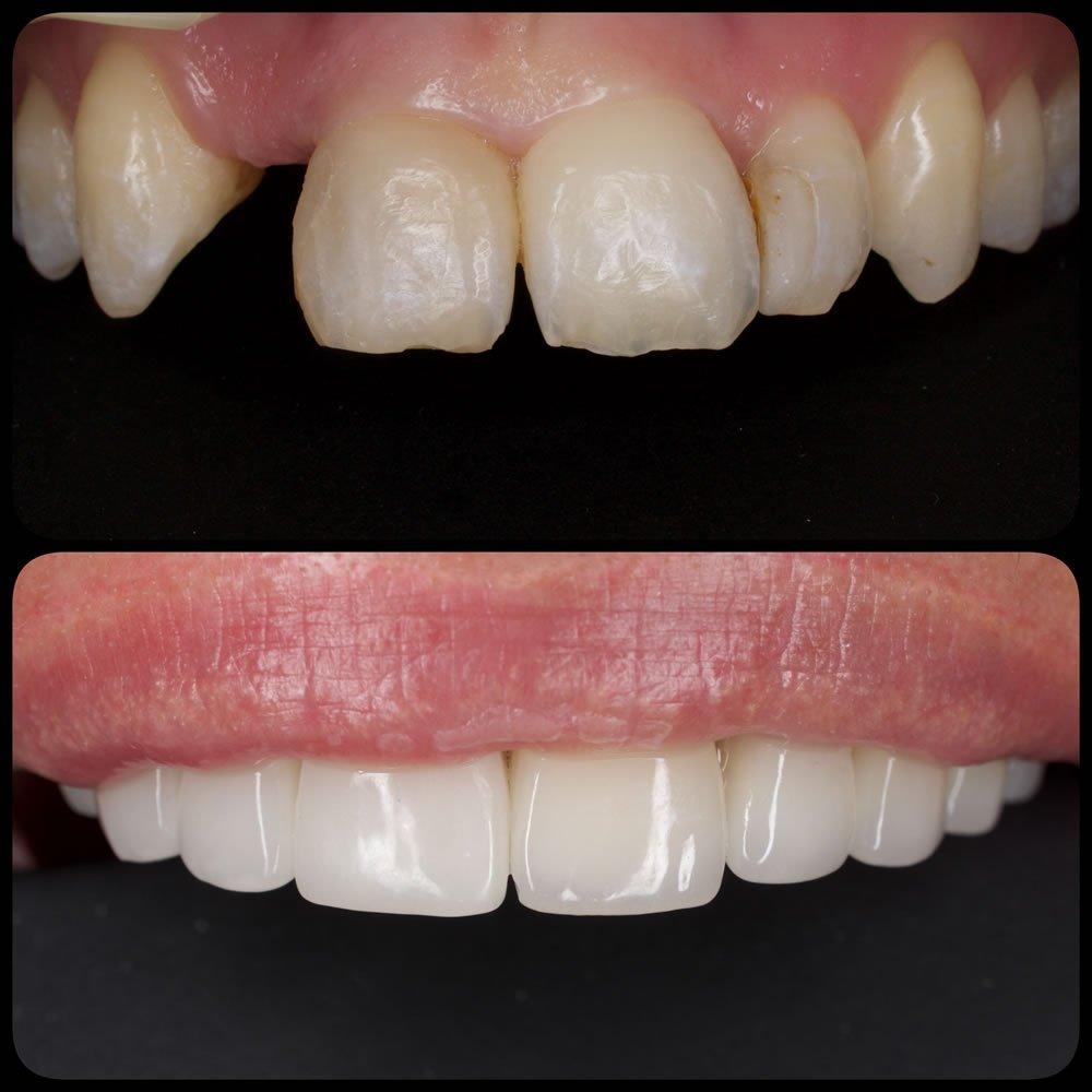Coroane dentare - dinti albi