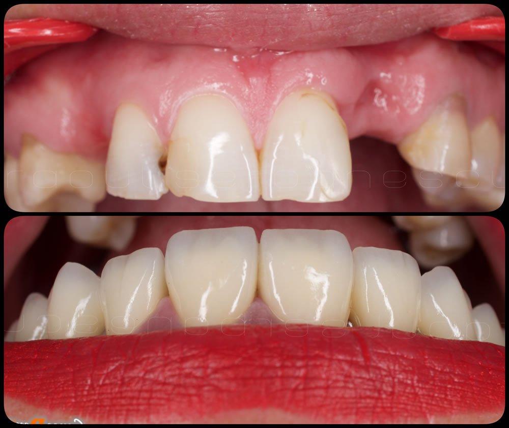Coroane dentare - dinti sus