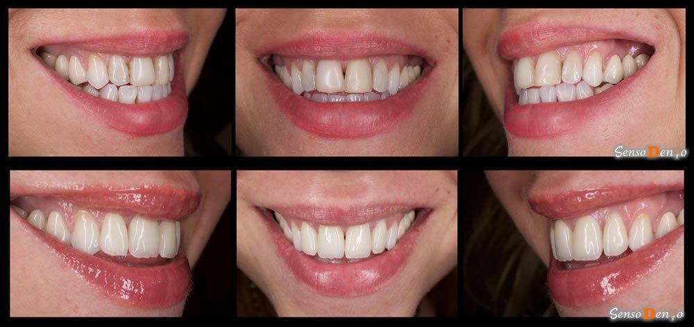 Coroane dentare - inainte si dupa