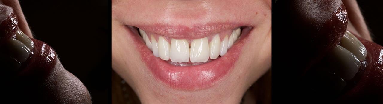 Estetica Dentara - Clinica Estetica Dentara - Protetica Dentara
