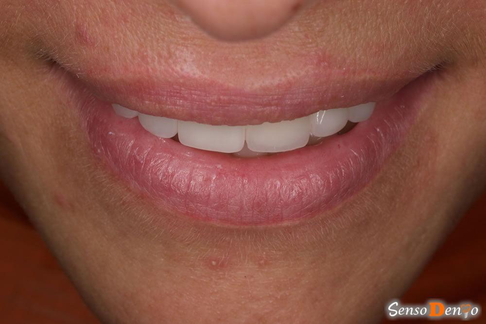 Estetica Dentara - Coroana Dentara zirconiu