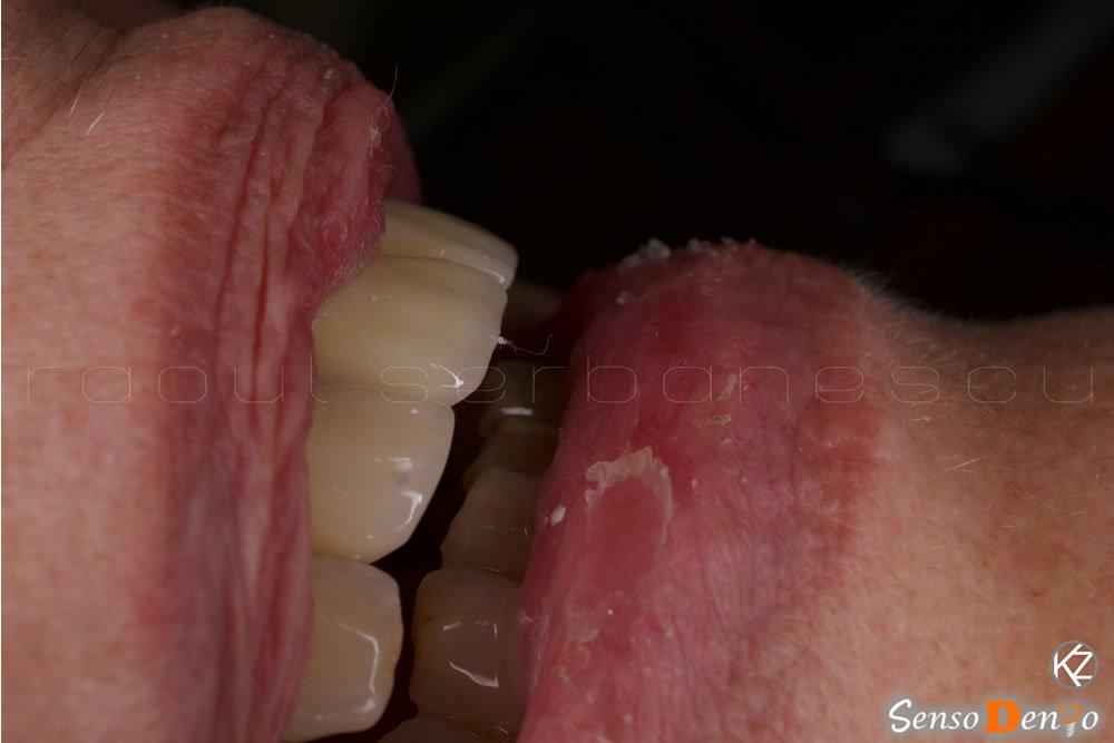 Estetica Dentara - Coroana Dentara