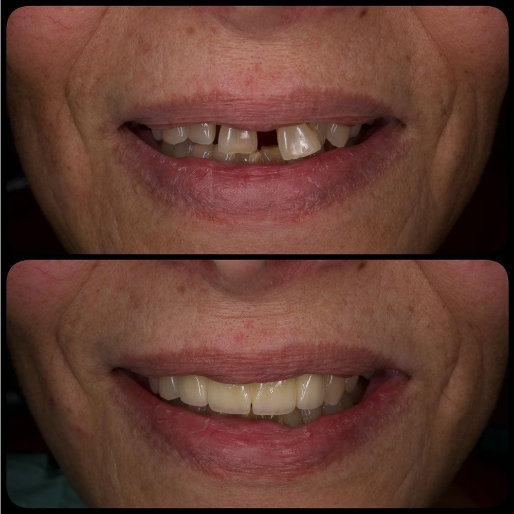 Estetica Dentara - Coroane Dentare