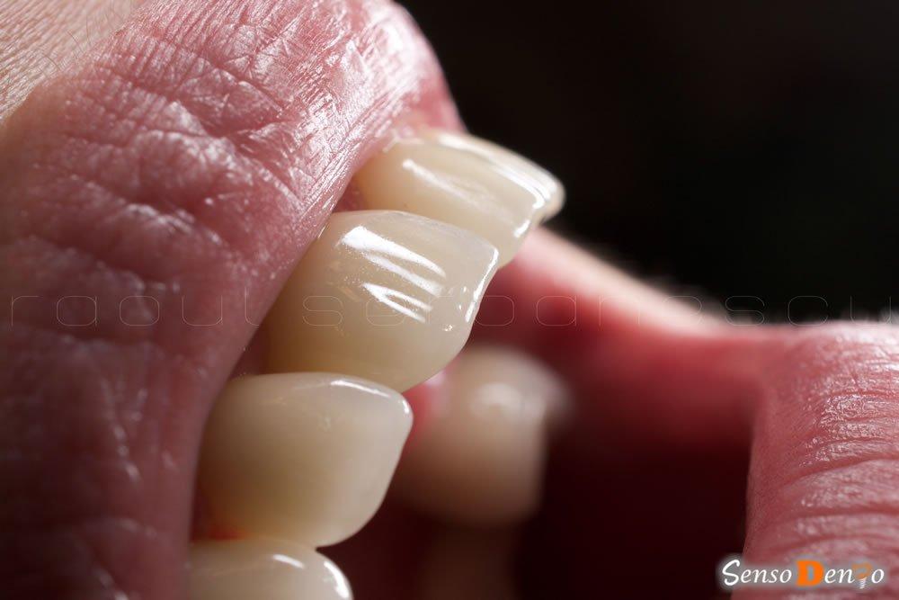 Estetica Dentara - Fateta Dentara