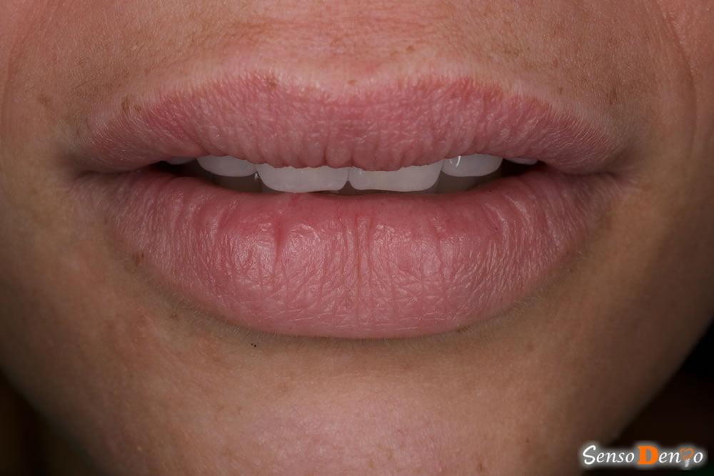 Estetica Dentara - Fatete Dentare