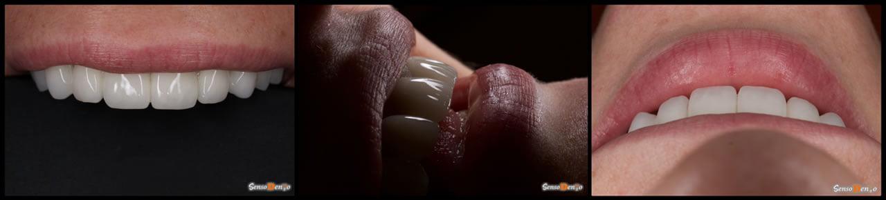 Estetica Dentara - Clinica Estetica Dentara - Protetica Dentara - Coroane dentare - Fatete dentare - Implanturi dentare - Proteze dentare