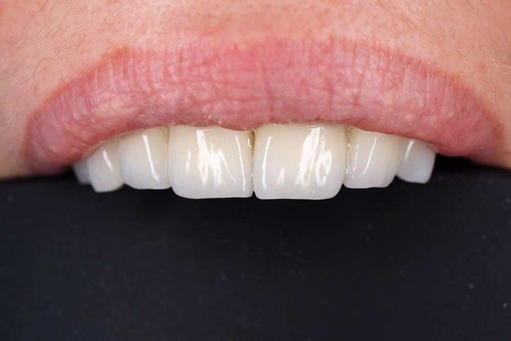 Fatete dentare dinti fata
