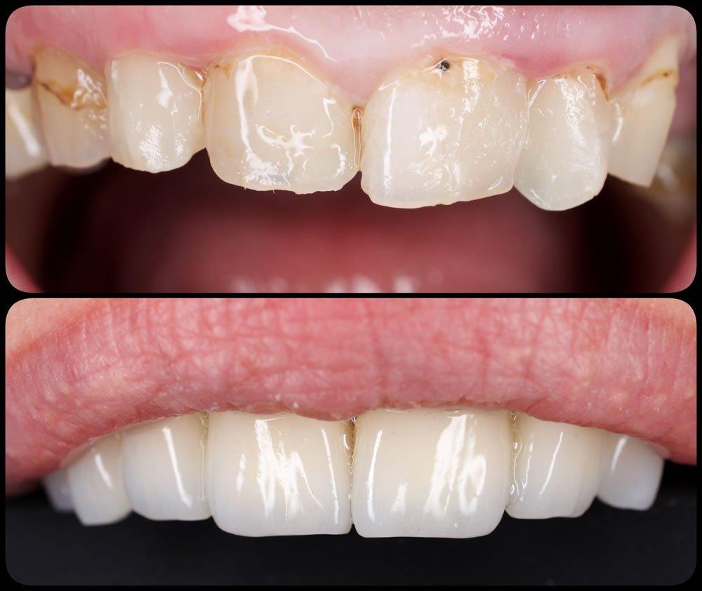 Fatete dentare dinti sus