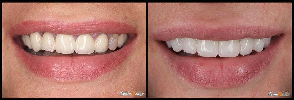 Fatete dentare dinti