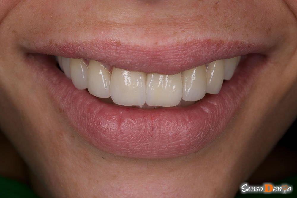 Fatete dentare estetice