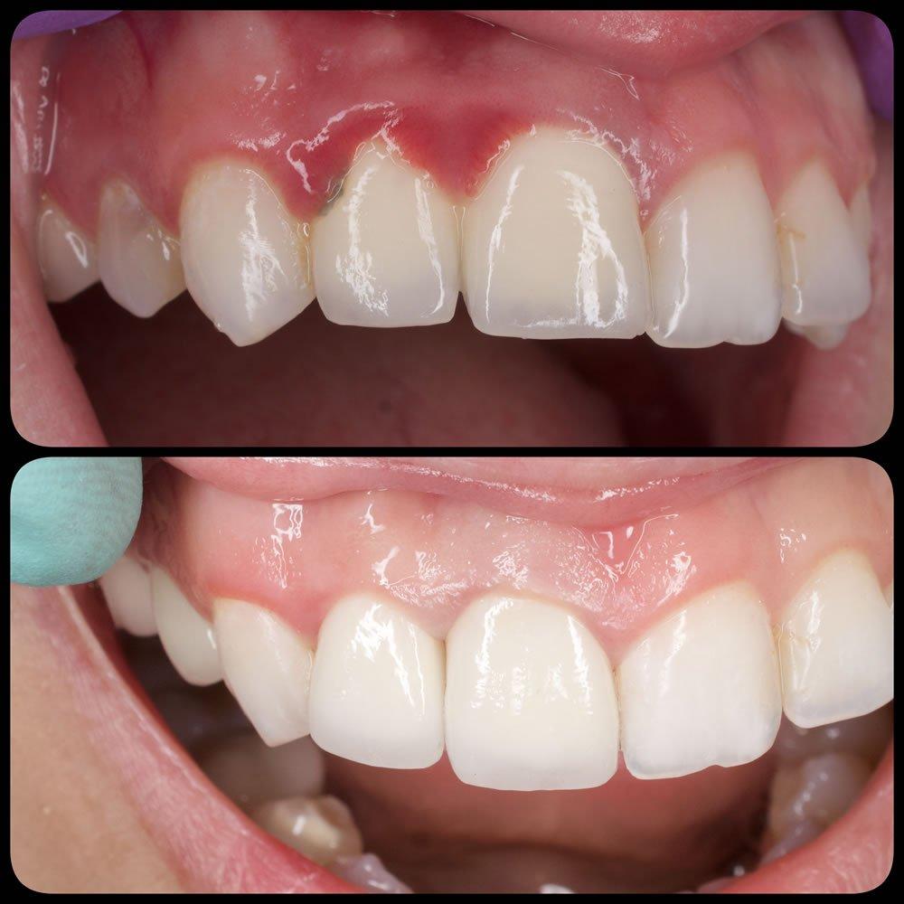 Fatete dentare provizorii