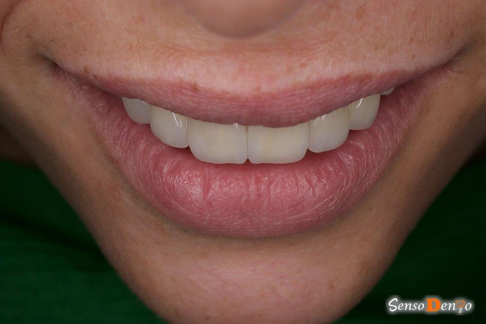 Fatete dentare - pentru un zambet frumos