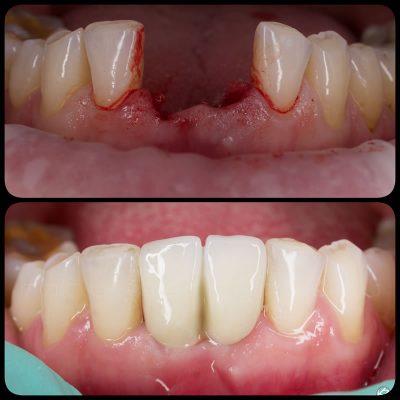 Implantologie dentara - Estetica dentara - Protetica dentara - Implanturi dentare