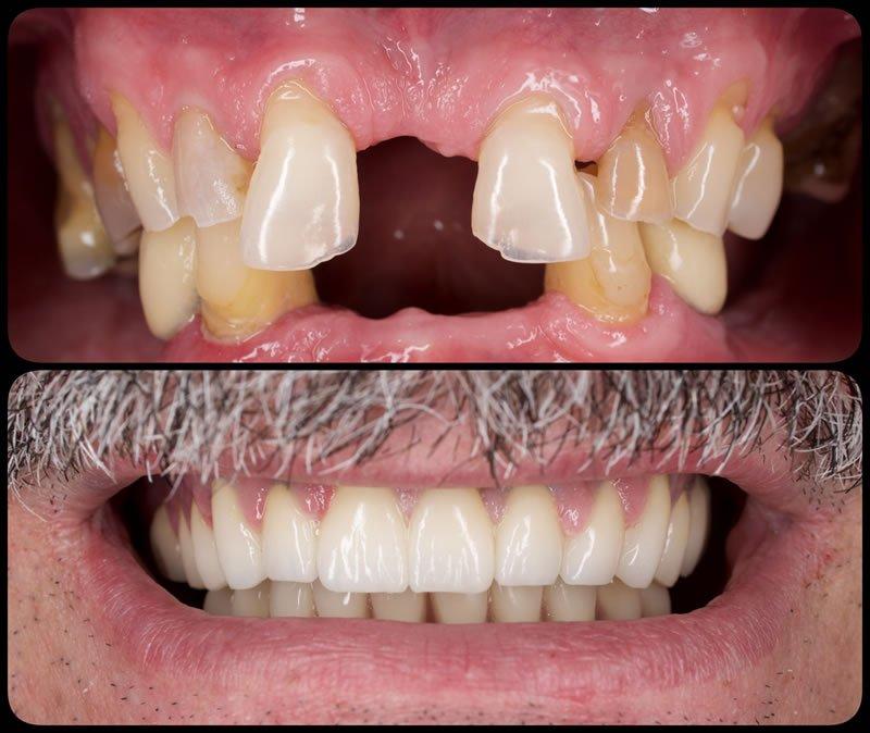 Implanturi dentare - Estetica dentara - Protetica dentara