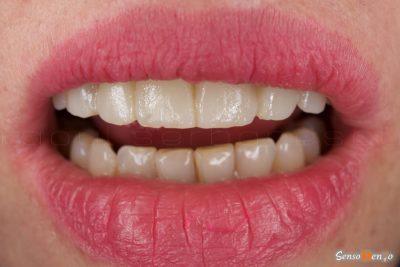 Mock-up fatete dentare