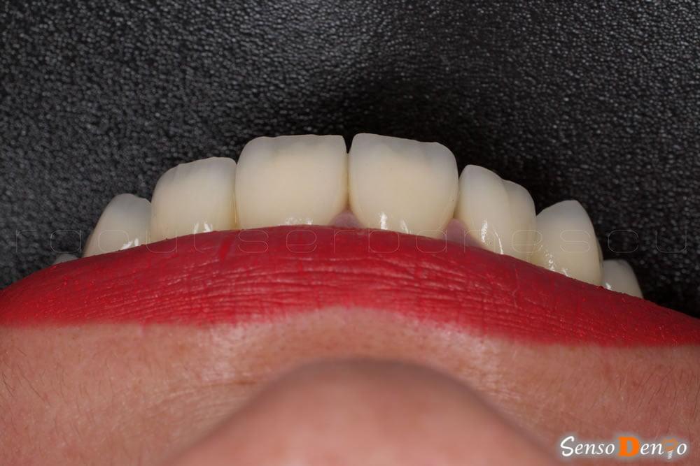 Protetica dentara - Coroana Dentara zirconiu