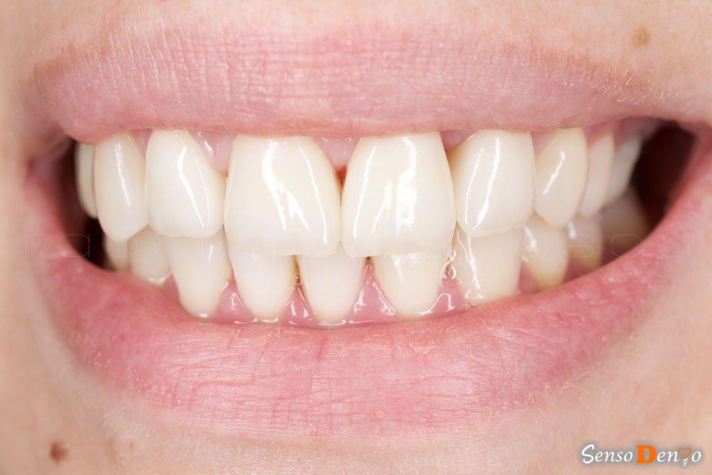 Protetica dentara - Coroana Dentara