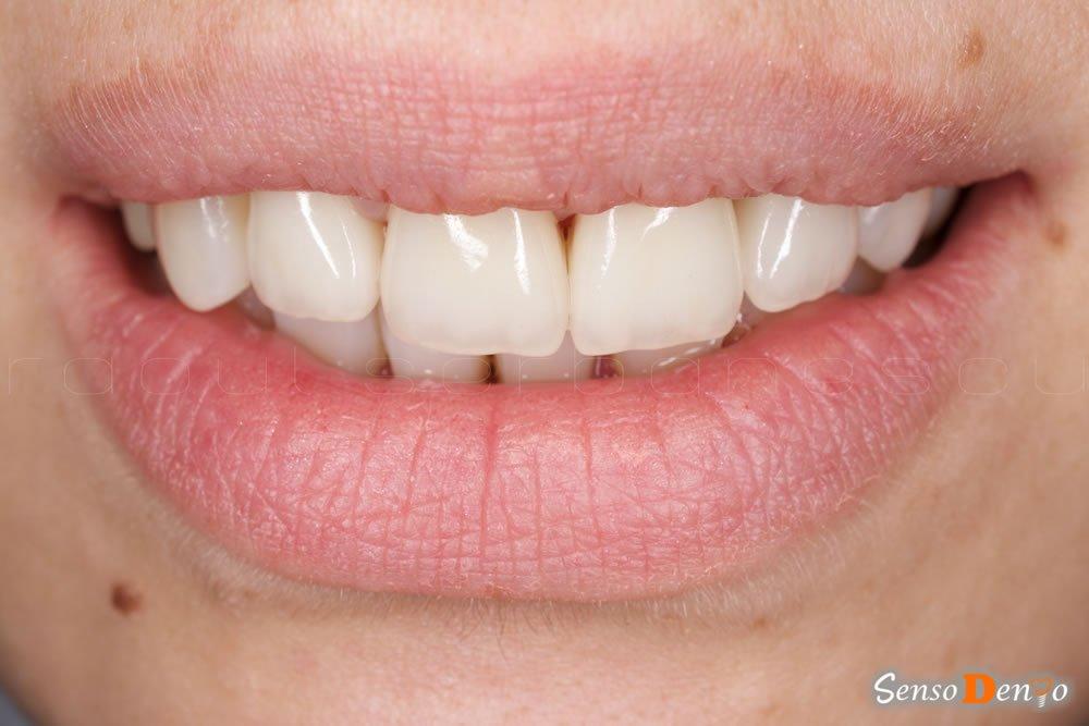 Protetica dentara - Coroane Dentare