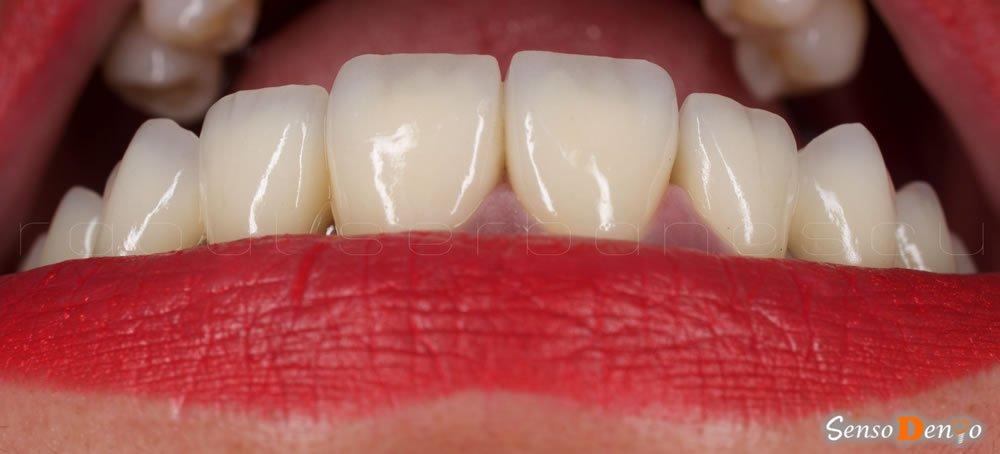 Protetica dentara - Estetica dentara - Coroana Dentara
