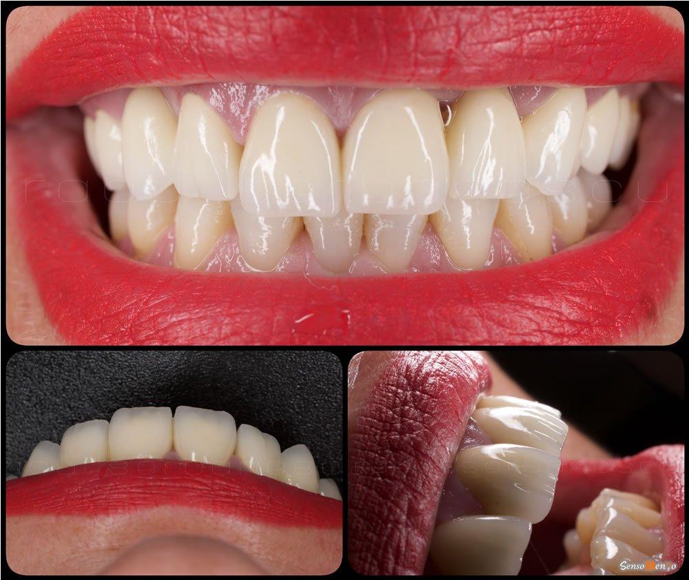 Stomatologie estetica - Estetica Dentara - Protetica Dentara - Fatete dentare - Coroane dentare - Implanturi dentare - Proteze dentare